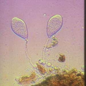 Plasmopara
